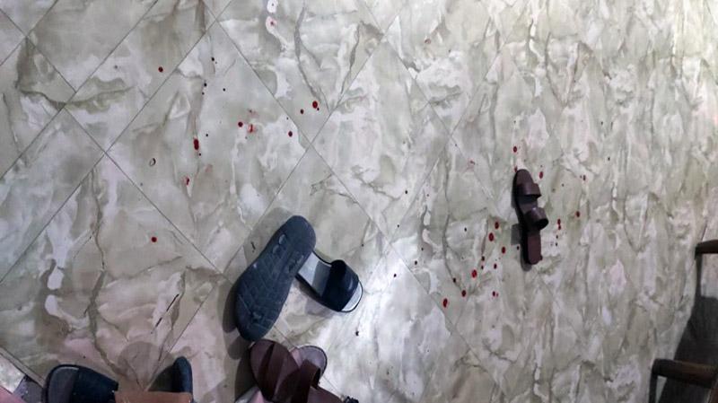 FOTO : Dara Korban Bercucur di TKP Pasca Penusukan, Senin malam (28/09/20)